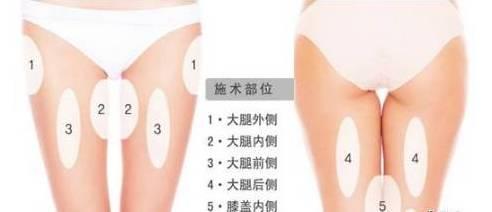 杭州大腿抽脂