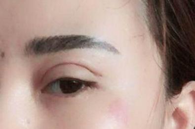 眼瞼下垂 失敗